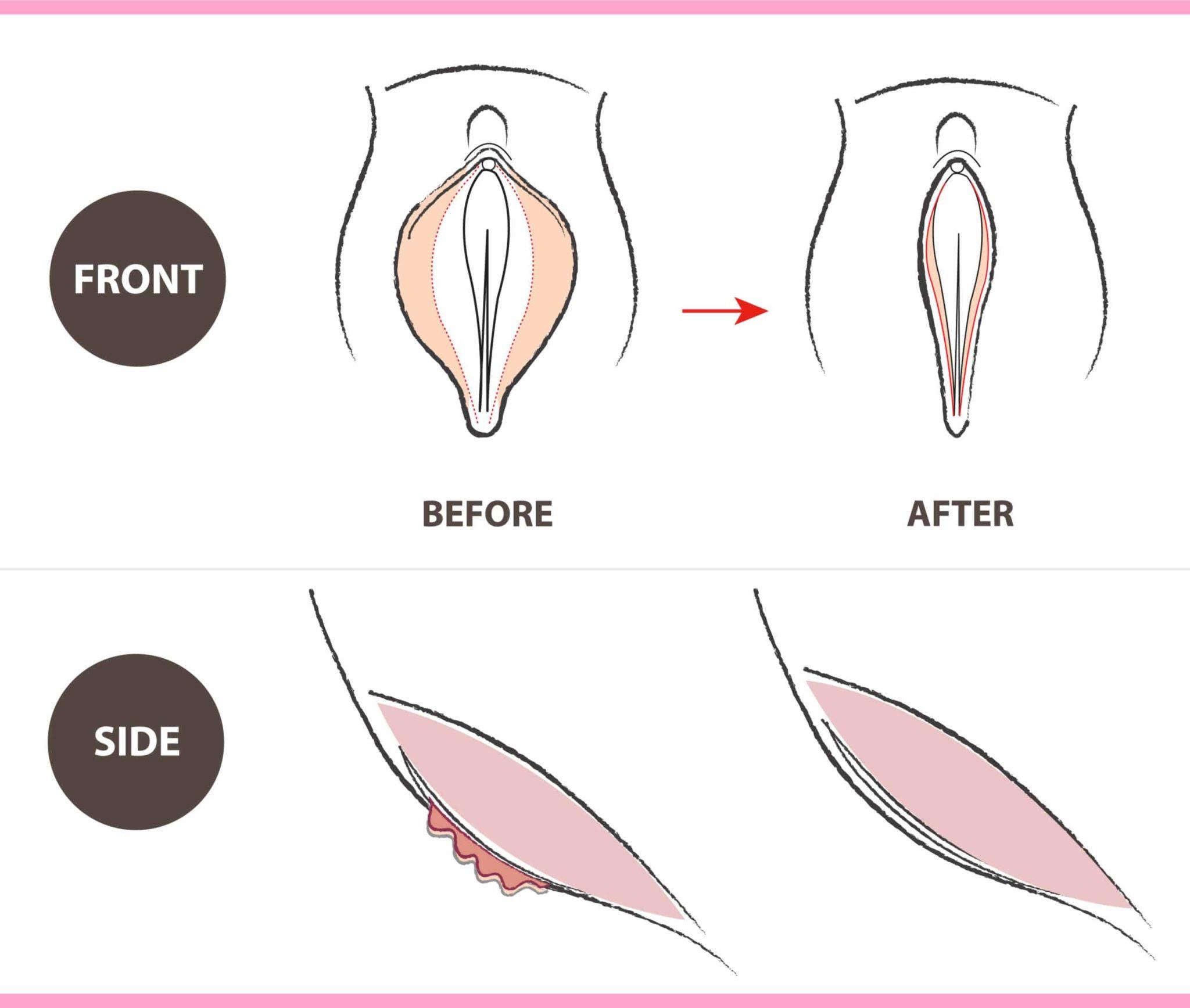 designer vagina before and after