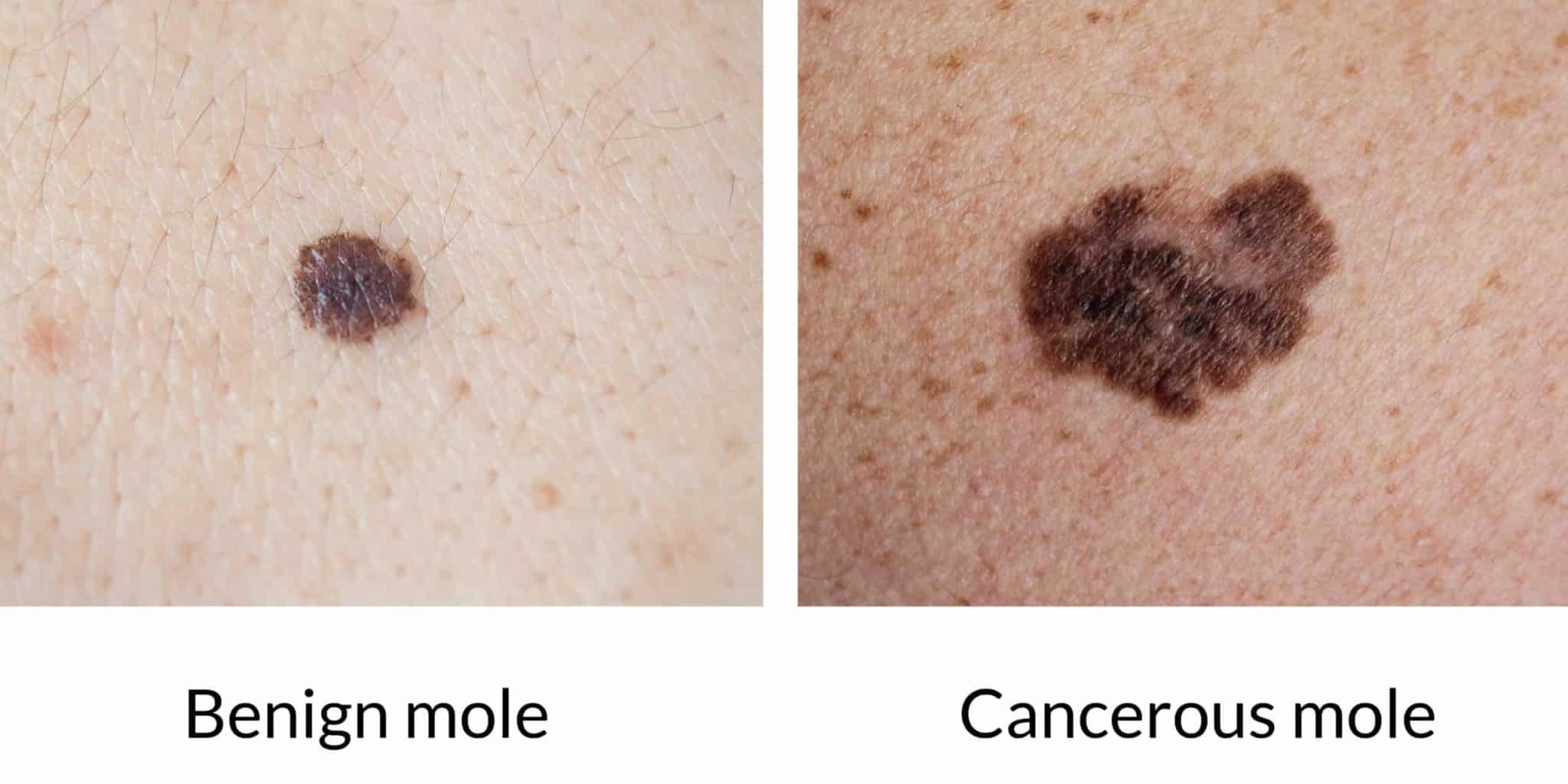 healthy mole vs cancerous mole