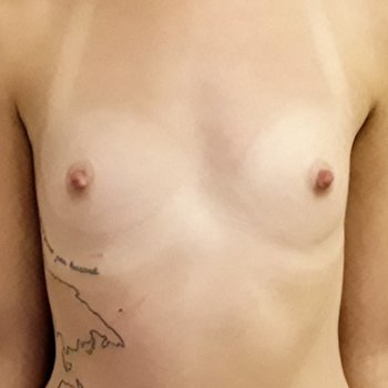 Breast enlargement before and after