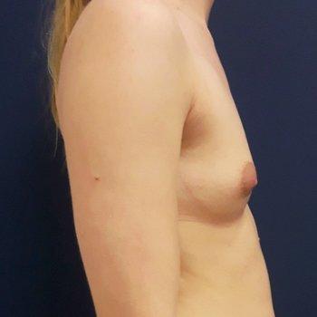 breast enlargement before