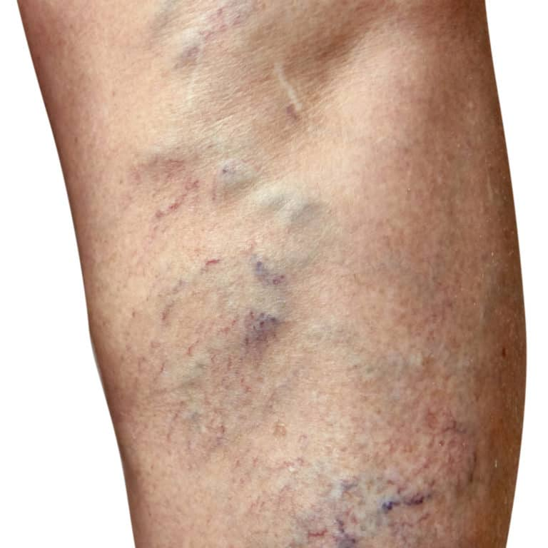 varicose veins before