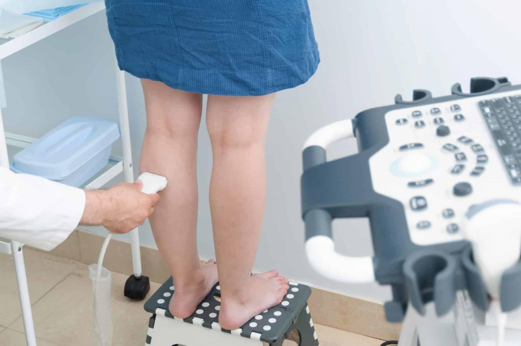 varicose veins ultrasound