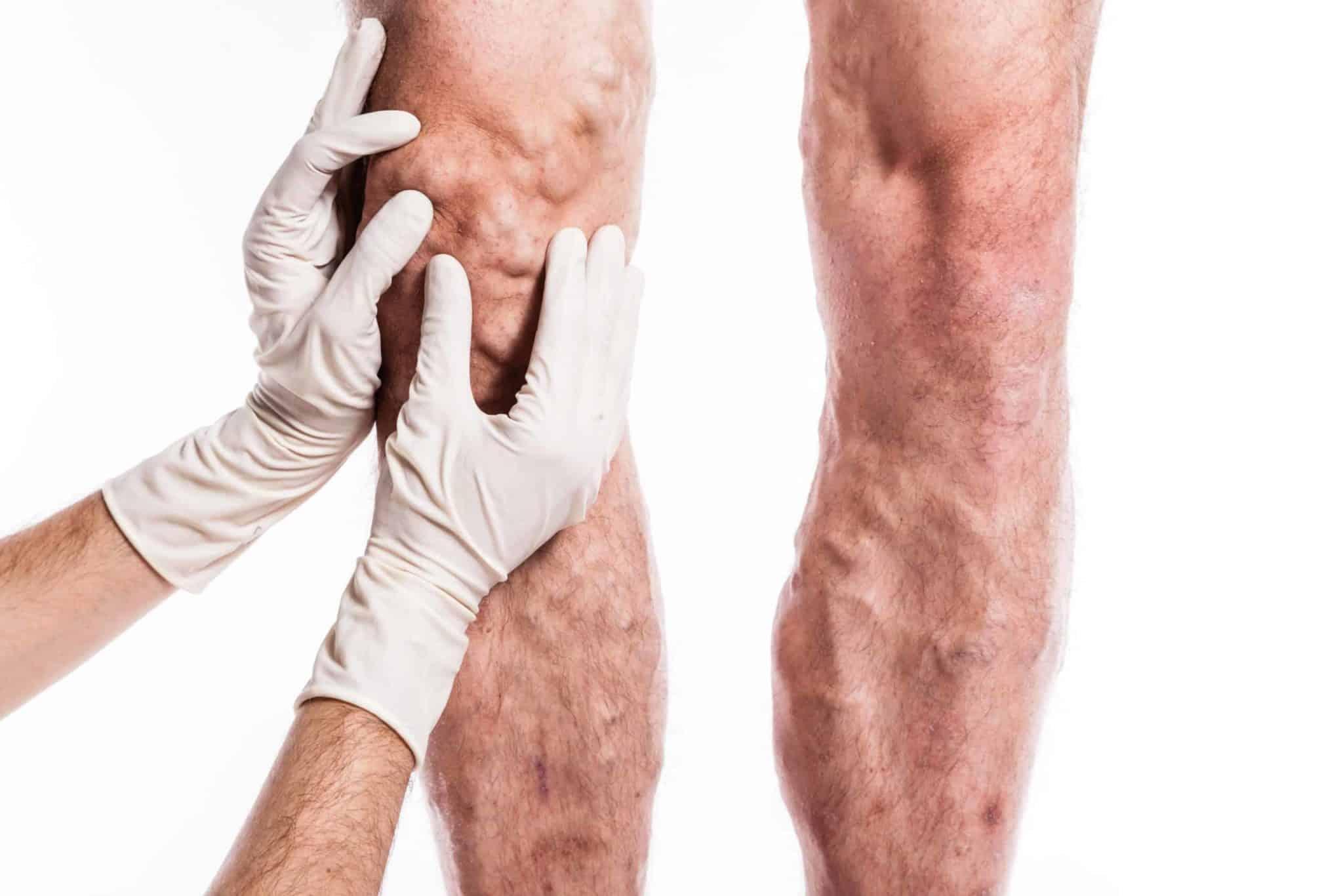 severe varicose veins